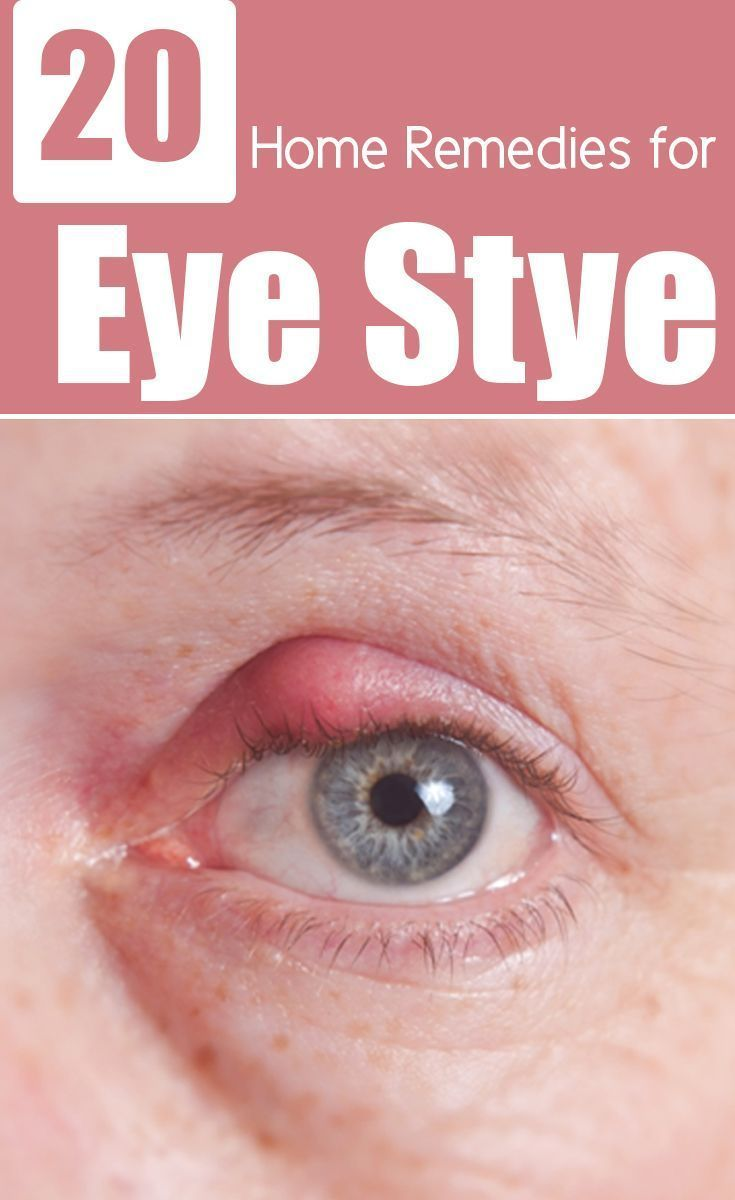 how to get rid of eye stye overnight