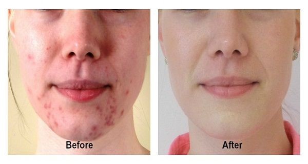 You struggle with pimples or acne on your face? If the answer is yes, then you've probably tried many treatments and methods to remove them. This simple and e