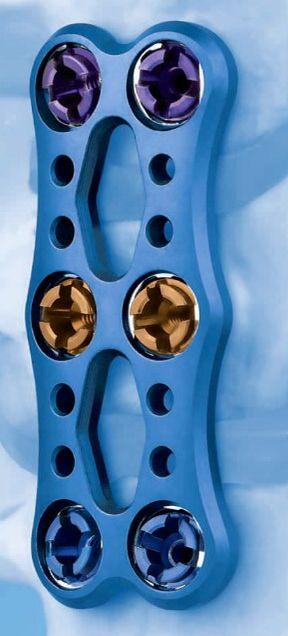 depuy vectra anterior cervical plates pinterest. Black Bedroom Furniture Sets. Home Design Ideas
