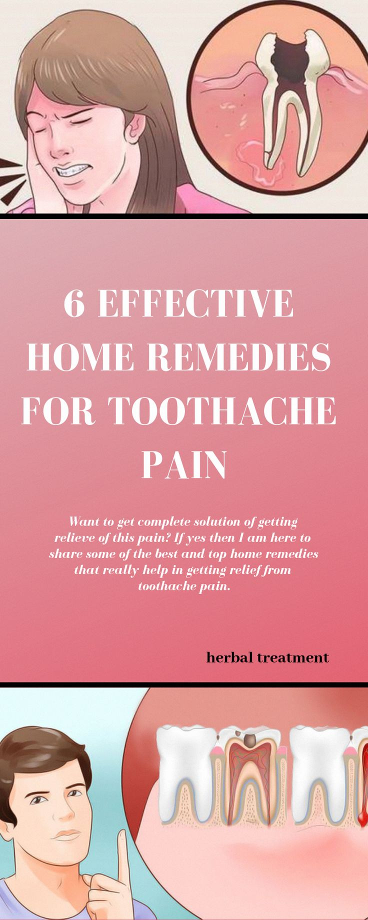 Home remedy for toothache swollen gums healthyrecipes