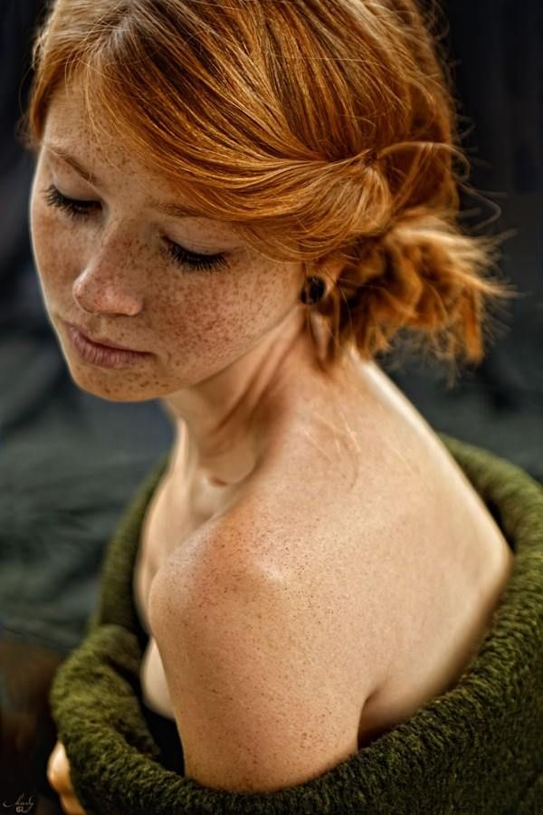 Covered Freckles Redhead  For-Redheads - Freckles -7898