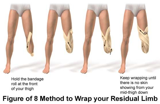 """Prosthetic Leg Types 