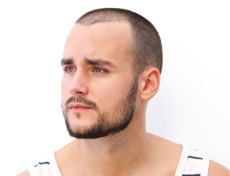 Bald spots or patchy areas in a beard