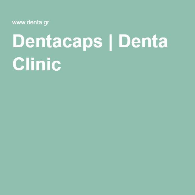 Dentacaps | Denta Clinic