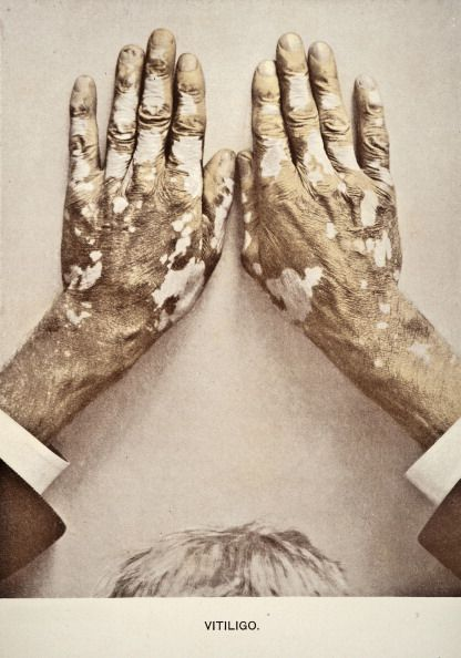 A medical photograph from 'Photographic Atlas of the Diseases of the Skin' illustrates a case of Vitiligo a condition causing depigmentation of the skin, 1903.