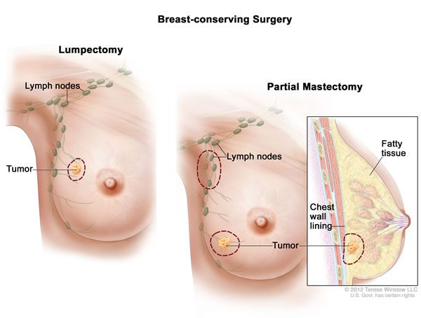 Main Causes And Tips To Overcome Breast Leaking Problem