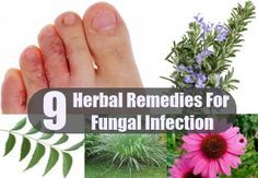 9 Best Herbal Remedies For Fungal Infection