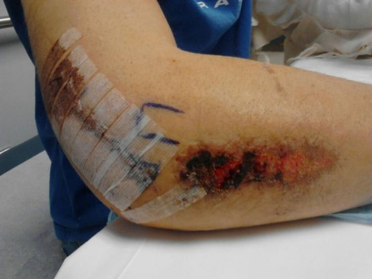43 best images about Broken Arm on Pinterest | Pictures of ...