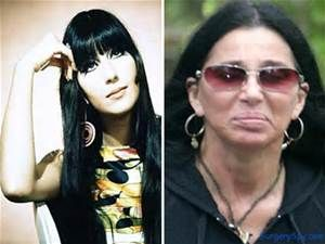 Cher Plastic Surgery - Bing Images