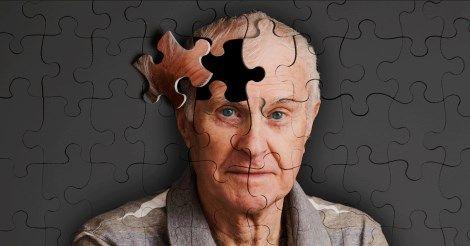 """""""Ecco come mio padre con Alzheimer sta guarendo grazie alla Vitamina D"""""""