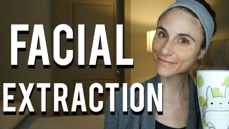 Facial extractions: acne, blackheads, pores, milia, cysts| Dr Dray