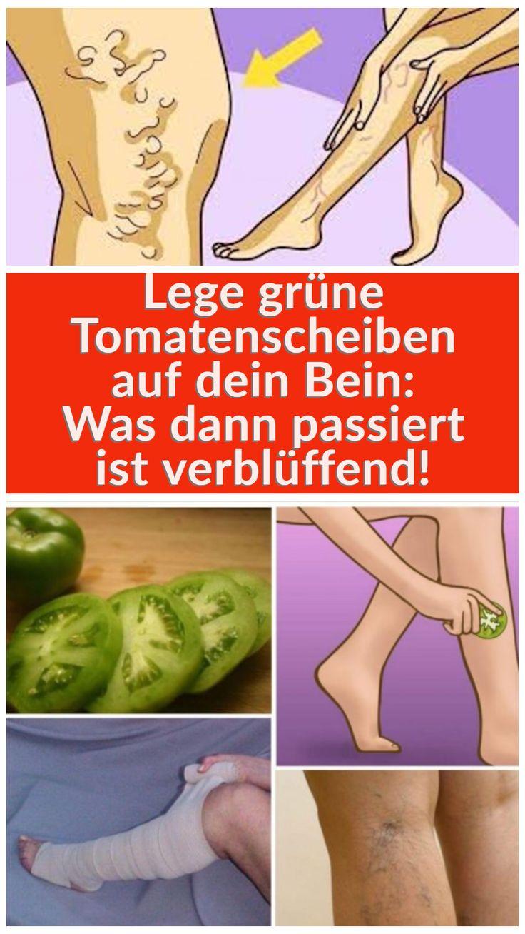 Lege grüne Tomatenscheiben auf dein Bein: Was dann passiert ist verblüffend!