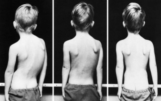 Schroth Method: A non-surgical alternative for treating scoliosis
