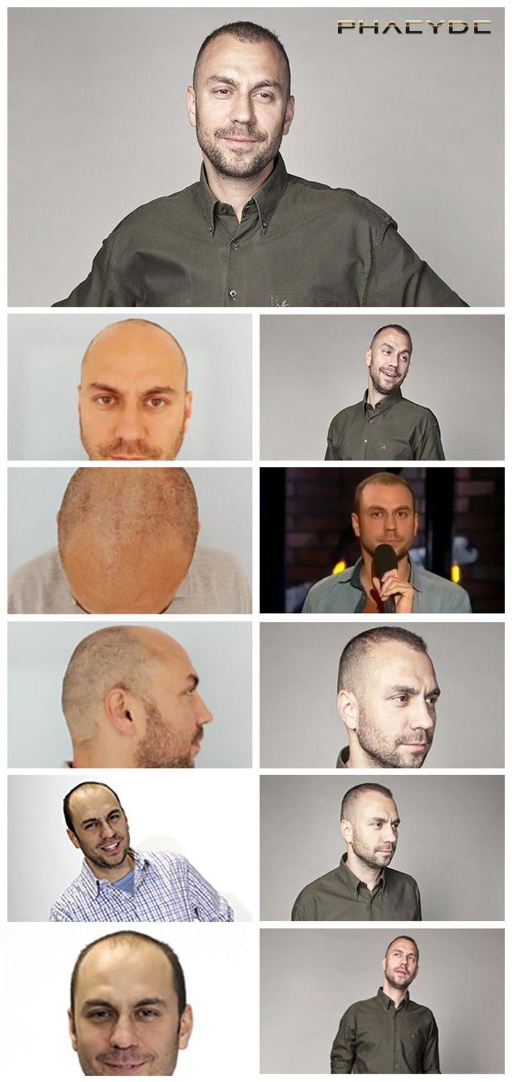 """Dette billede viser de vidunderlige resultater af 6500+ hår, som blev implanteret i zonerne 1-2-3 på toppen af hans hoved. Resultat billeder taget 10-13 måneder efter hans hårtransplantation. Udført på PHAEYDE Clinic.  <a href=""""http://dk.phaeyde.com/har-implantation"""" rel=""""nofollow"""">dk.phaeyde.com/har-implantation</a>"""