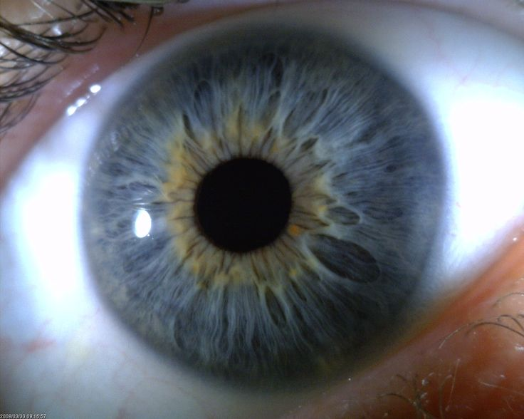 15 Best Images About Iris Patterns Iridology On Pinterest