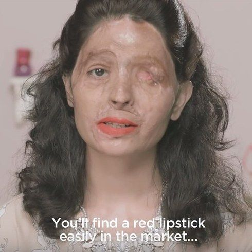 This Acid Attack Survivor Shows How Easily Available Acid Is, Through A Make-Up Tutorial