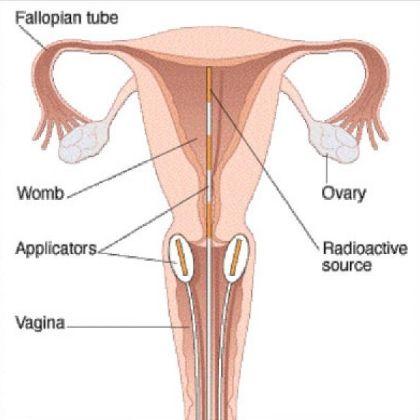 28 best cervical cancer awareness images on pinterest health major symptoms of cervical cancerwomanhealth ccuart Choice Image