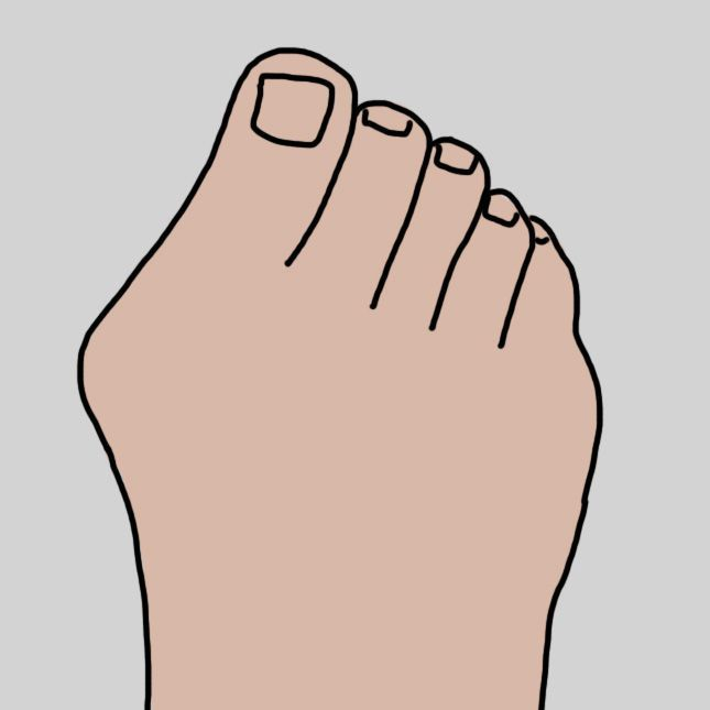 11 Easy, All-Natural Ways To Treat Nearly All Of Your Foot Problems   #natural #nearly #probl…