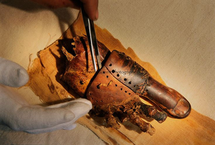 Oldest known prothestic. The foot of a mummy missing its big toe and beside it a prosthetic toe of leather and wood to replace the amputated real one. Ancient Egypt, 1000-600 BC