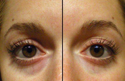 5 Tricks To Make Your Dark Circles Disappear | Dark eye ...