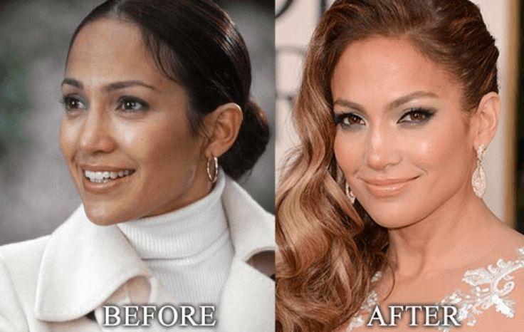 Jennifer Lopez Nose Job jennifer lopez nose job plastic surgery pictures boyfriend networth