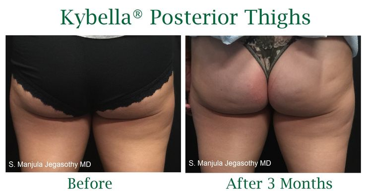 Small localized fat deposits on the back of the upper thighs immune to lunges and squats can be minimized with 1 Kybella® treatment.