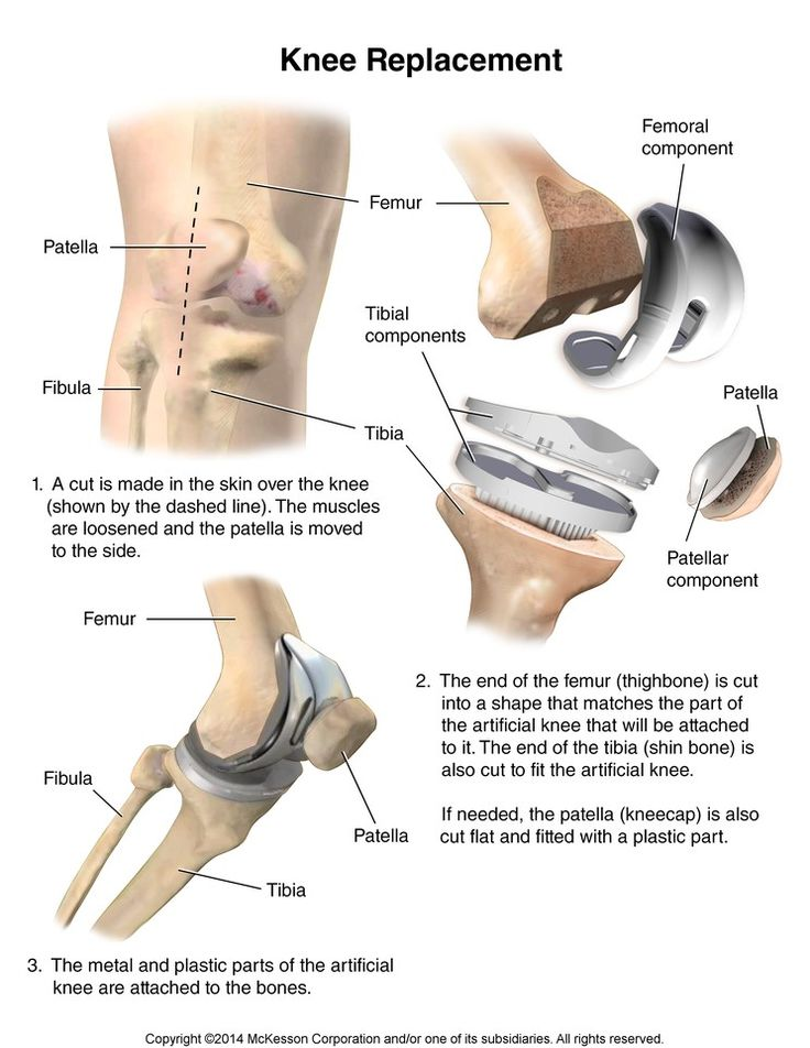 Summit Medical Group - Knee Replacement Surgery Discharge Information