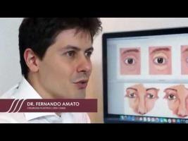 Blefaroplastia - Cirurgia nas Pálpebras