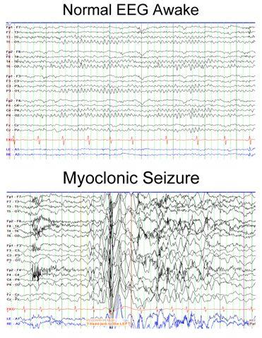 Normal EEG Awake compared to Myoclonic Seizures.