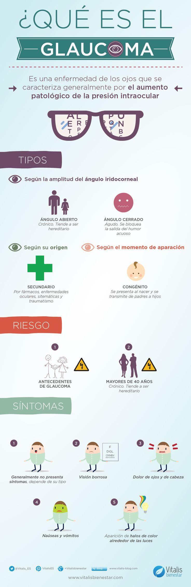 Interesante infografía sobre el glaucoma:  Origen, riesgo y síntomas.