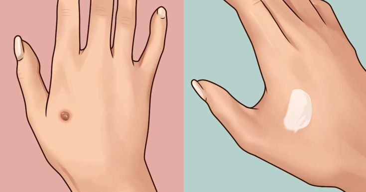 Warts can be both painful and embarrassing, but this home remedy is easy and effective.