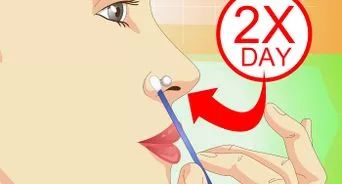 Treat an Infected Nose Piercing