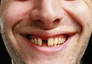 Scientists have used stem cells derived from urine to grow teeth, according to a study published in the journal Cell Regeneration.