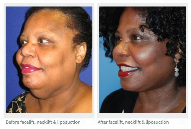 Seattle   Bellevue Dr. Philip Young Facelift   Neck Lift   Face   Neck Liposuction Before and After