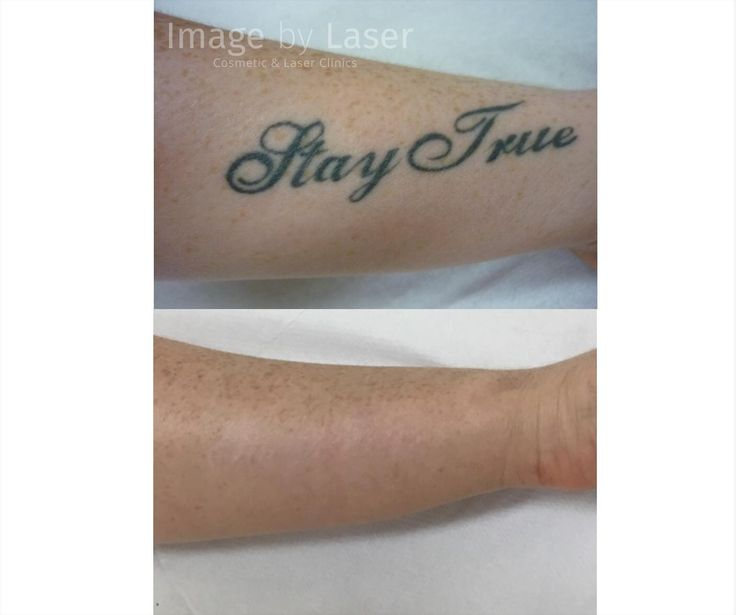 Laser tattoo removal before after want amazing laser