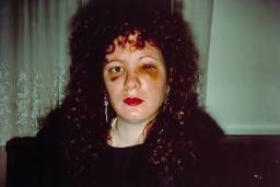 Nan Goldin Self photograph - 'Nan one month after being battered' (1984)
