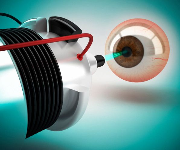 What is LASIK Eye Surgery?  Quick answers are here.