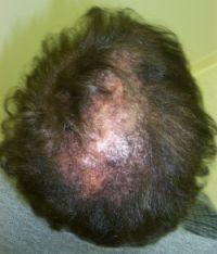 Discoid lupus scalp