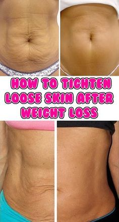 How to Tighten Loose Skin After Pregnancy or Weightloss