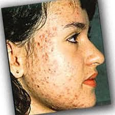 Acne vulgaris is really a pretty common issue in youngsters and grown ups alike. It carries gentle, average and severe methods, often triggering scarring depending on how critical the skin area trouble is. Although generally associate