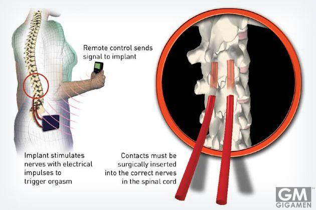 夜の営みを手術でより良く? 脊髄に電極を埋め込んでオーガズムを得られる機械