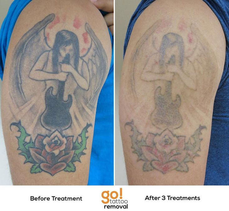 728 best tattoo removal in progress images on pinterest for Tattoo bandage removal