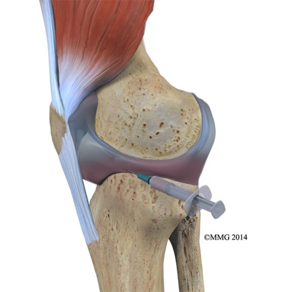 Find out what causes a swollen knee, including injury, gout, osteoarthritis, and other types of arthritis.