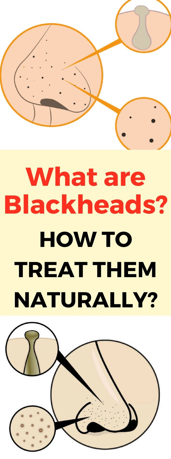 What are Blackheads and How to Treat Them Naturally...? Read!!!