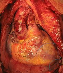 Heart transplantation - Wikipedia, the free encyclopedia
