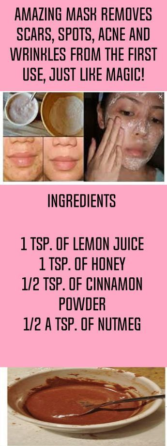 Amazing Mask Removes Spots, Scars, Acne And Wrinkles From The First Use, Just Like Magic!
