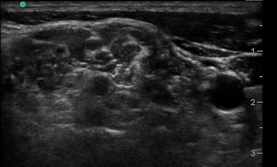 Ultrasound image of the interscalene region