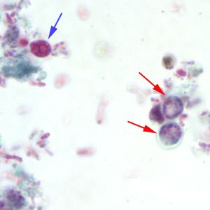 Cryptosporidium sp. oocysts stained with trichrome.