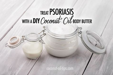 Coconut Oil Psoriasis Remedy with DIY Body Butter!