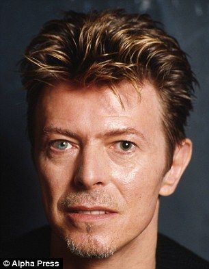 Bowie's distinctive eye was caused by a condition known Aniscoria